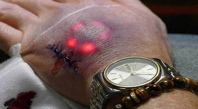 Lampu LED di Dalam Kulit Manusia