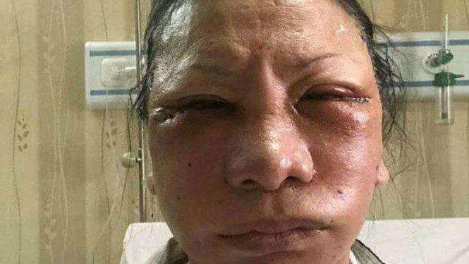 Ratna Sarumpaet Babak Belur Dipukuli Orang Tak Dikenal - Sumber Facebook Atminudin Atbar